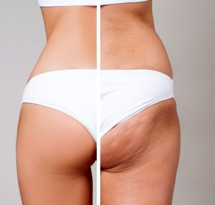 My Secrets Of How To Prevent Cellulite Revealed
